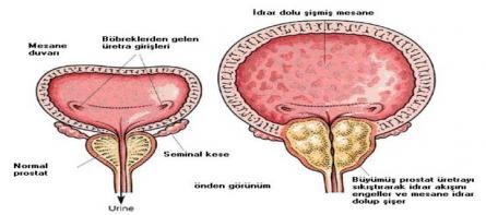 ERKEK SAĞLIĞI VE PROSTAT (Prostat Nedir?)